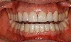 Dal dentista in Romania, un'opportunità per risparmiare.